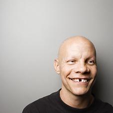 Mann mit Zahnlücke